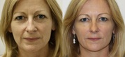 Facial Fillers Treatment at Competitive Prices