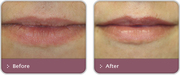 Lip Enhancement Treatment Nottingham at Yourderma